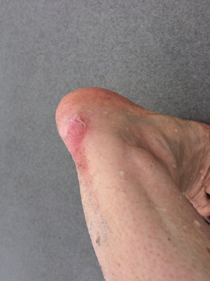 One blister after my wellbeing walk in Tasmania